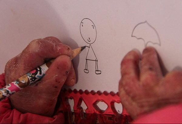 بیماران پروانه ای در پیله درد و رنج ، فوت 15 کودک پروانه ای از کمبود دارو